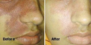 Acne scar treatment,Dermatologist Jalandhar in Punjab